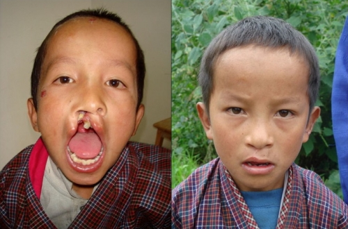 Bhutan 2006/2007